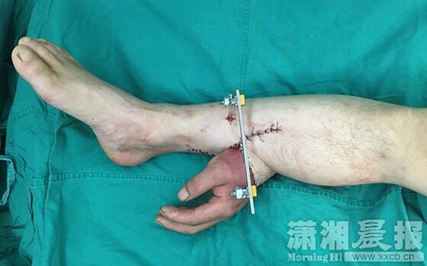 Doctors Graft Hand To Man's Leg For A Month To Keep It Alive