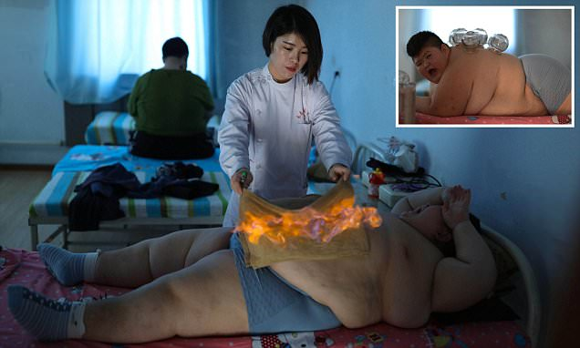 Fat-burning Treatment ! To Lose Weight